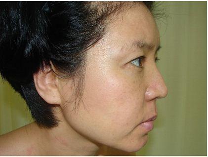 """Chị Mai Hương: """"Cuộc sống của tôi đã có lúc dường như bế tắc khi không có cách nào chữa khỏi nám da…"""""""