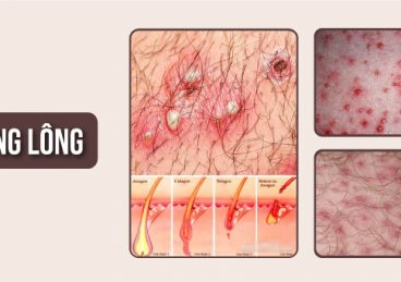 Điều trị dứt điểm viêm nang lông – công nghệ New E Light 6E