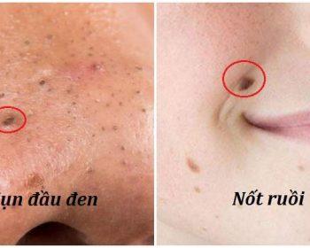 Có đúng mụn đầu đen sẽ thành nốt ruồi nếu không chữa trị?